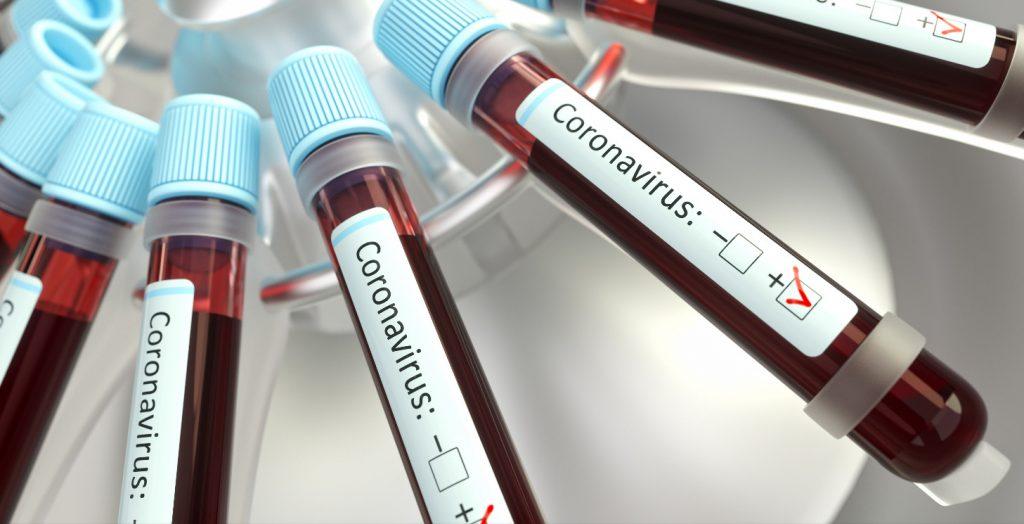 Coronavirus Respiratory Infections Viruses Vaccines